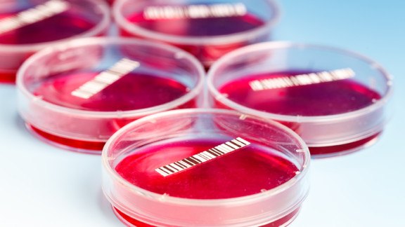 Blood cultures are among the most important laboratory tests but things can go wrong